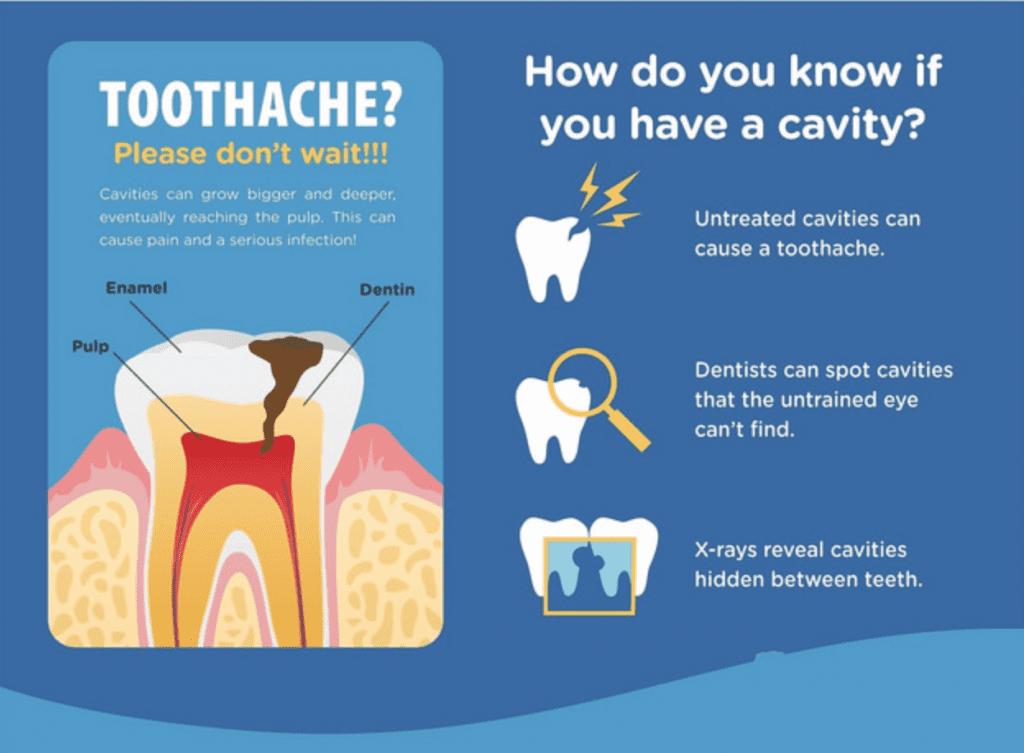 cavities-houston