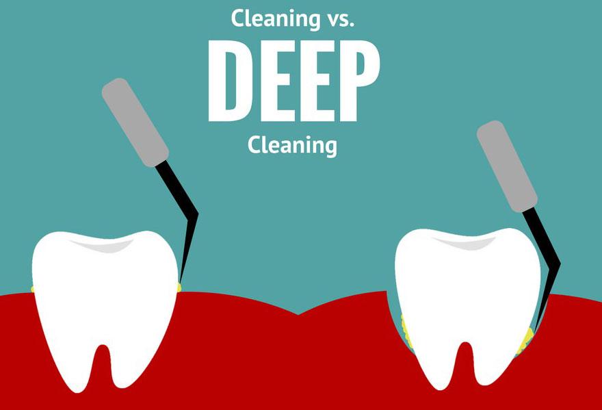 deep-cleaning-houston-dental