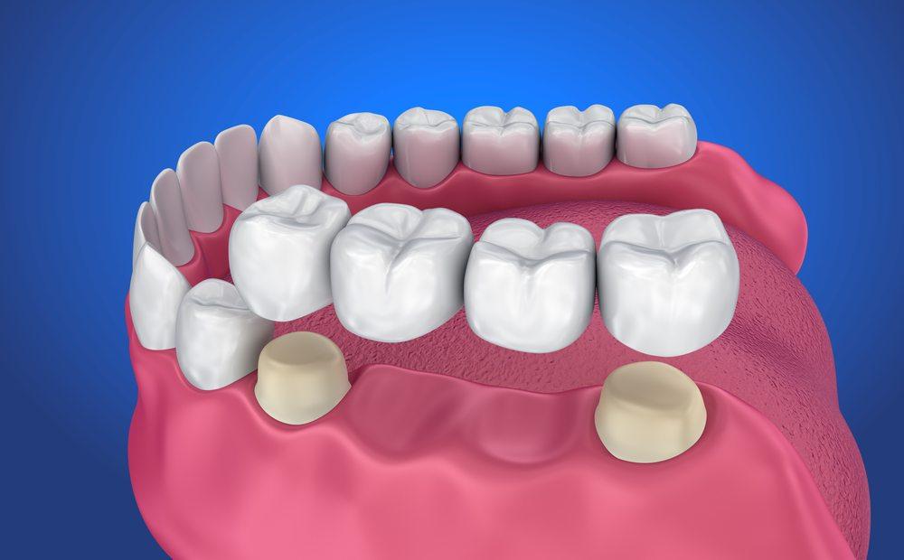 Dental Bridge Houston 77090