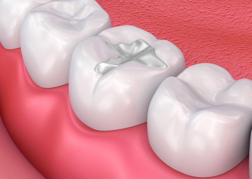 dental-fillings-houston