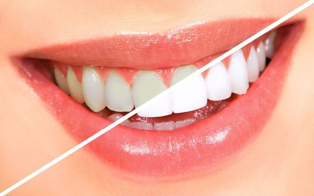 houston teeth whitening