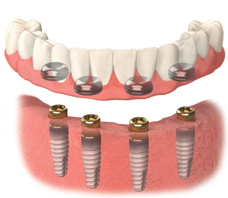 snap on dentures houston