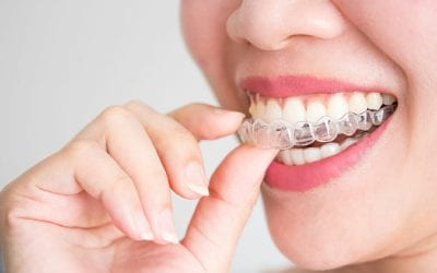 7 Benefits of Invisalign Therapy in North Houston
