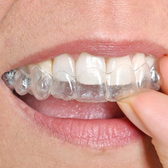 invisalign-houston-north