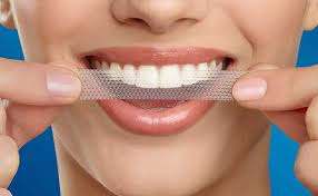 whitening-strips-houston