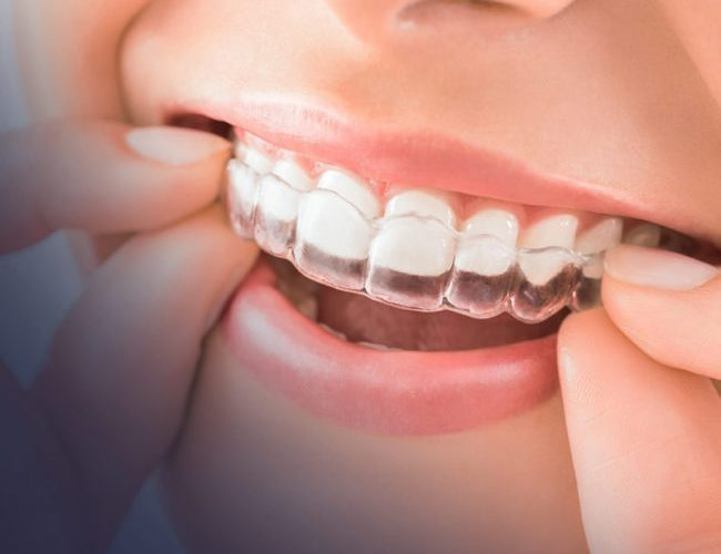 Oral Care Throughout Your Invisalign Treatment