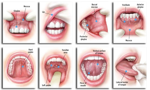 oral-cancer-screening-and-detection_houston