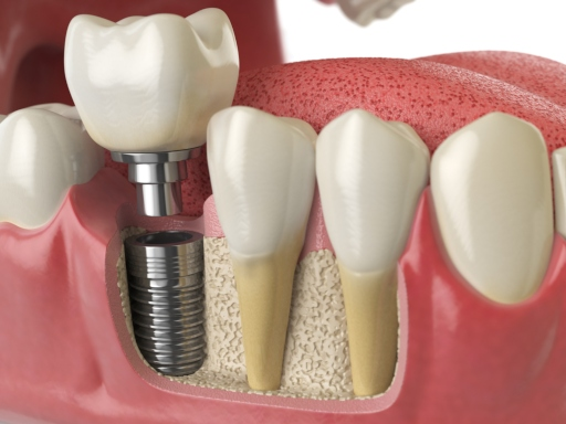 dental-implants-houston