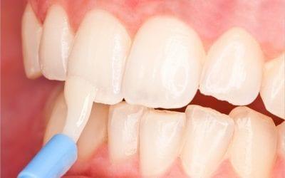 Fluoride Treatments for Healthy Teeth In Houston