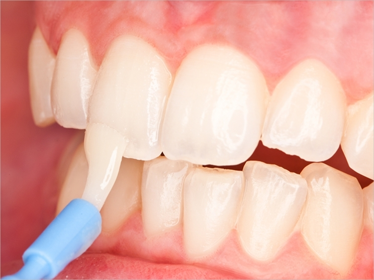 Fluoride Treatments for Healthy Teeth In Houston
