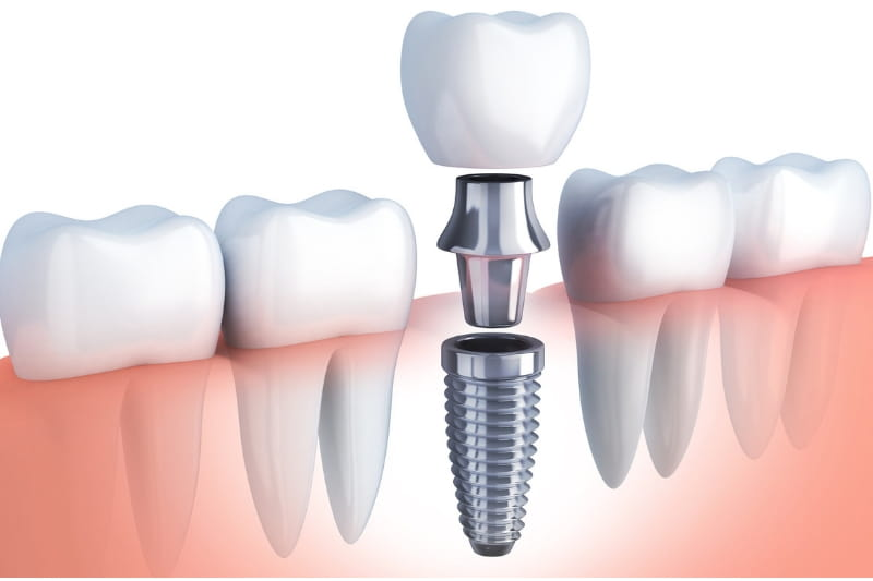 Dental Implants: The Best Tooth Replacement Option